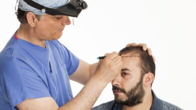Photo of What Is The Cost Of Hair Transplant Treatment?